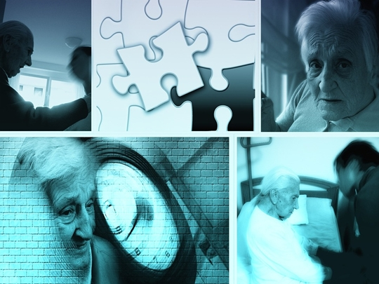 100뉴스,백뉴스,시니어,노인,치매,알츠하이머,노인성질환,노망,치매사망률,치매위험성